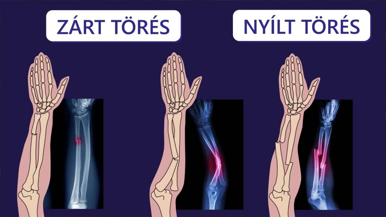csonttörés ízületi kezelés