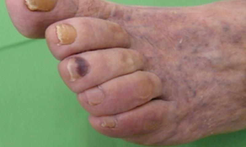 Bőrgyulladás a lábak ízületein, Miért fáj a lábfejek