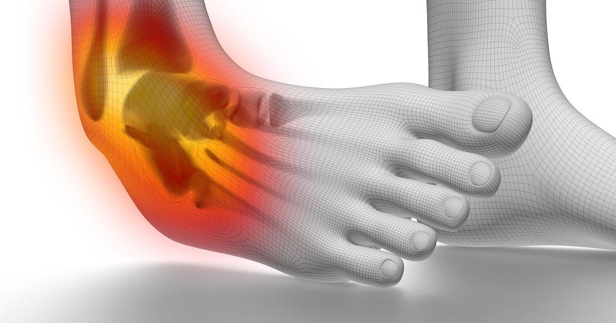 hogyan lehet enyhíteni a boka ízületeinek fájdalmát