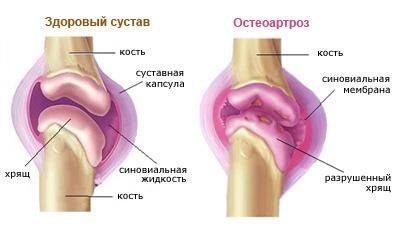 az artrózis kezelésének fő módszerei