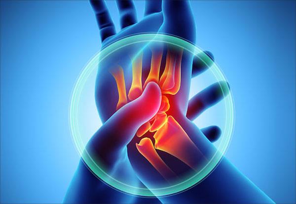 gyógyszeres fájdalom gyógyszeres csontritkulás az ízületek fájnak futás közben