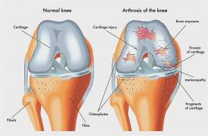 hogyan lehet kezelni a kéz arthrosisát