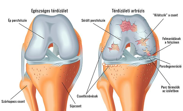 hosszabbító fájdalom a bal térdben