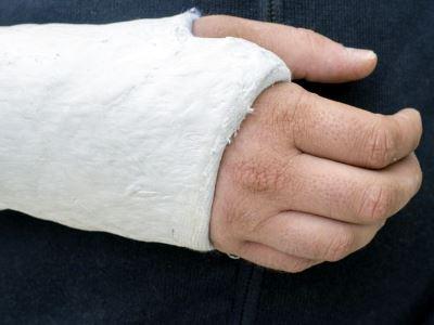 kenőcs a csuklóízület törése után fájdalom a bal csípőízületben