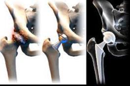 koksz artrózis és kezelése