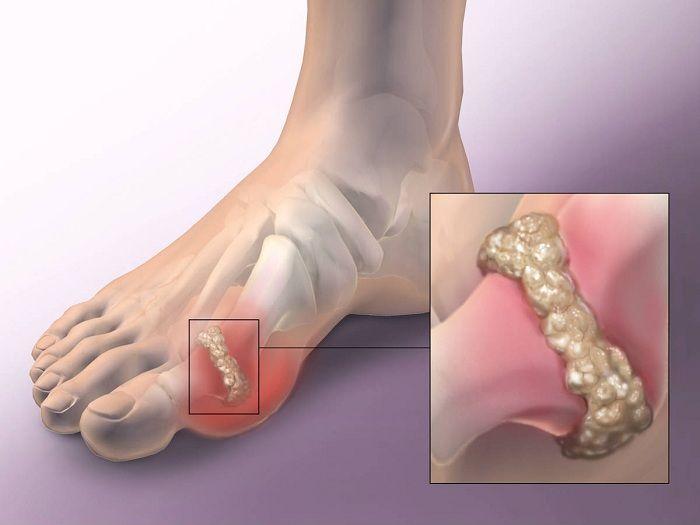 lábízületi receptek csípőízületek ízületi gyulladásainak kezelése