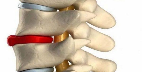 mi a térdízület csontvelő ödéma