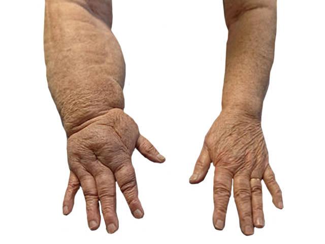 miért duzzadnak a lábak a csípőtörés után
