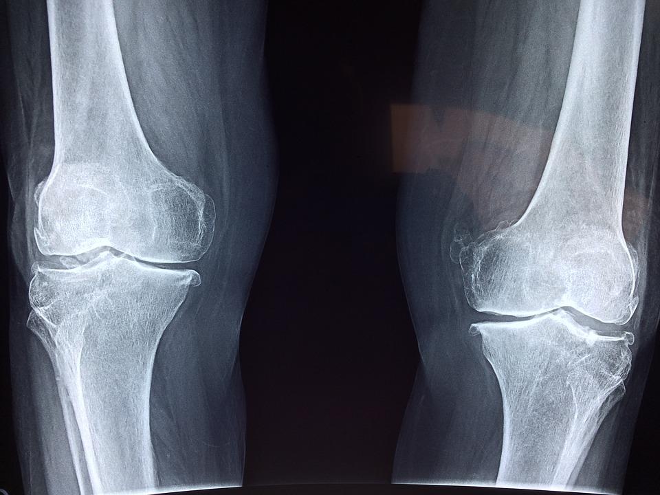 szóda az artrózis kezelésében