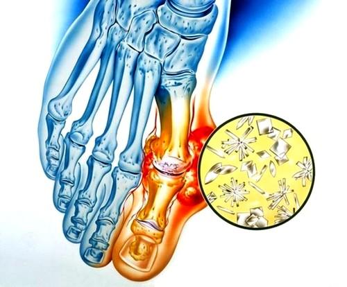 térdízület kezelési tabletták ízületi gyulladása ízületi szalaggyulladás