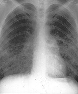 tüdő kötőszövet betegségek)