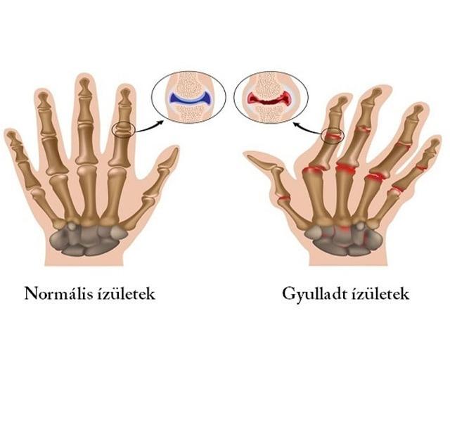 krém hátfájáshoz oszteokondrozis esetén