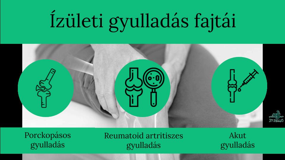 ízületi gyulladás ízületi gyulladáscsökkentés